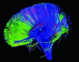 """Neural Pathways in the Brain"", Image by NICHD"